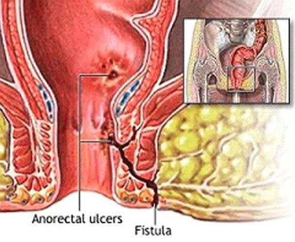 Anal-Fistula