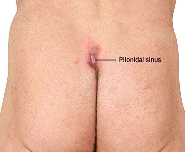 PILONIDAL_SINUS2